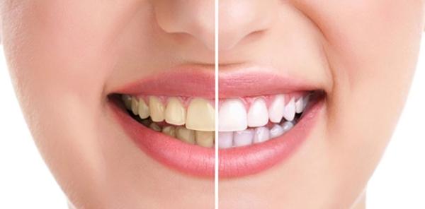 สุขภาพช่องปาก 5 สัญญาณเตือน ที่คุณควรตรวจเช็ค ก่อนปัญหาในช่องปากจะลุกลาม!