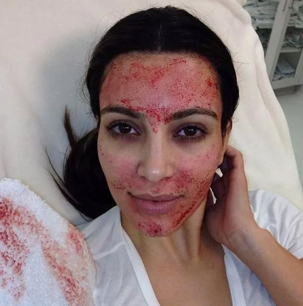 เจ็บนี้ไม่ลืม! 'คิม คาร์เดเชียน' เข็ดแล้วทำสวยด้วย Vampire Facial ทรีทเม้นต์เลือดอาบ!